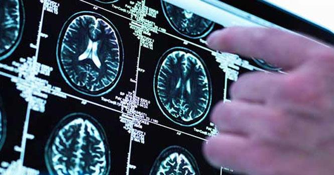 موٹے افراد کا دماغ چھوٹا ہوتا ہے، تازہ تحقیق