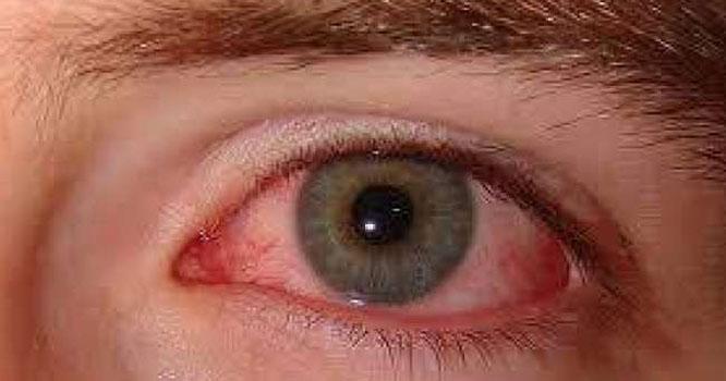 آنکھ میں درد کی دعا