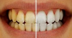 دانتوں کی رنگت کا اڑ جانا، نظام ہاضمہ کی خرابی کی علامت