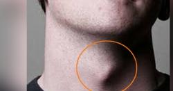 مردوں کے گلے میں موجود یہ ہڈی کیوں زیادہ باہرکو نکلی ہوتی ہے؟