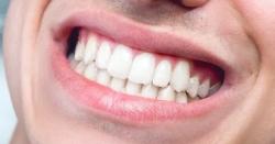 دانتوں کی پیلاہٹ اور داغوں کو ختم کرنے کیلئے ہزاروں روپے خرچ کرنے سے پہلے یہ خبر پڑھ لیں