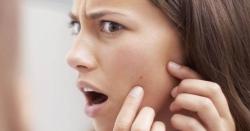 چہرے کے کیل مہاسوں سے نجات کیلئے بس یہ سستا جوس استعمال کریں
