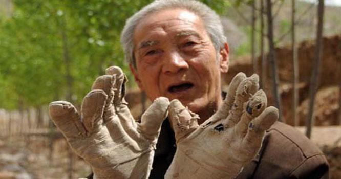 ٹانگوں سے محروم شخص نے 17 ہزار درختوں کا جنگل قائم کردیا