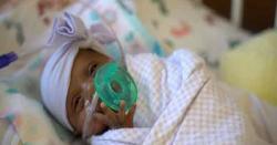 کیلیفورنیا: 245 گرام والی بچی کی پیدائش، نام سیبی رکھ دیا