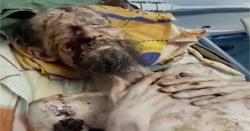 روس: ریچھ کے حملے سے زخمی شخص ایک ماہ تک موت سے لڑتا رہا