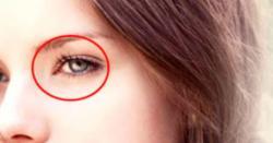 کیا آپ جانتے ہیں کہ آپ کی آنکھوں میں یہ نقطہ کیوں ہے ؟حیران کن وجہ