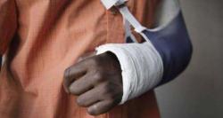 آستین کی ہڈیوں،کلائی،ہاتھ اور انگلیوں کی ہڈیوں کا ٹوٹ جانا