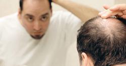 گنجے اور گرتے بالوں والوں کیلئے بڑی خوشخبری ،پیاز کے ذریعے بال پھر سے گھنے بنانے کا آزمودہ طریقہ