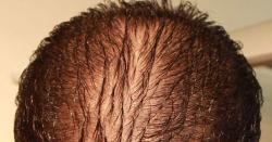 گرتے بال روکنے کے چند مفید ٹوٹکے